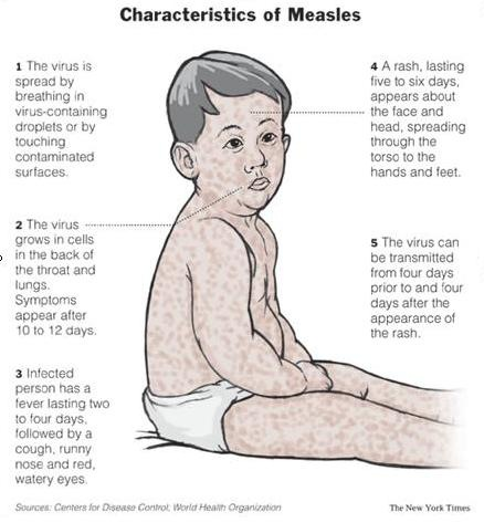 measles2